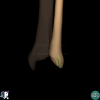Distal Fibula - posterior - groove for tendon of tibialis posterior